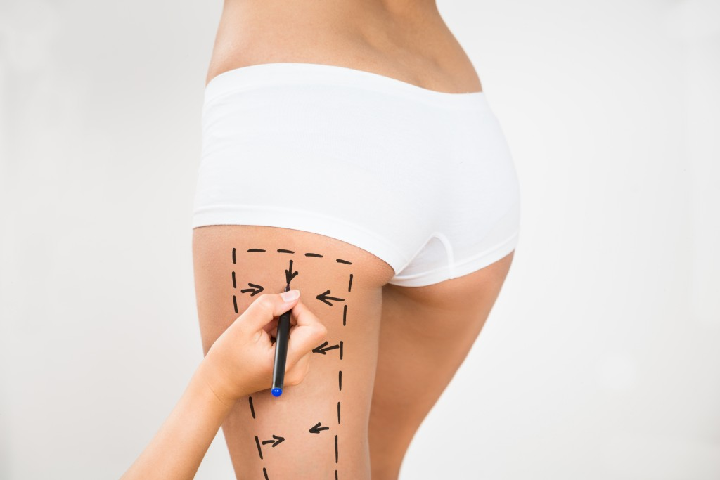 Person Hand Drawing Lines On A Woman's Thigh As Marks For Thigh Cellulite Correction